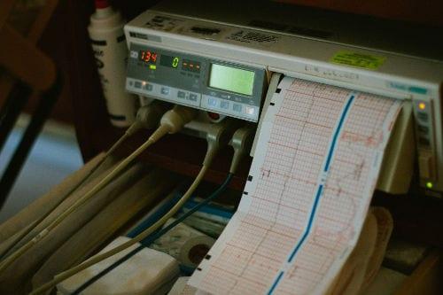 Estudios y pruebas preoperatorias: electrocardiograma