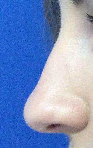 Foto antes de la rinoplastia