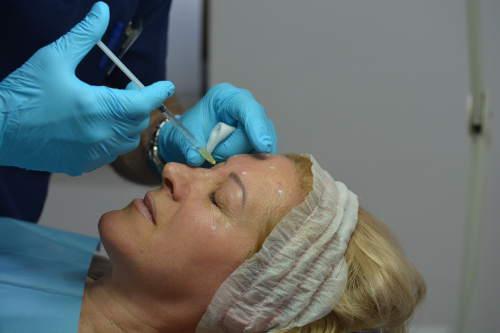 Botox en Valencia Dr. Molto