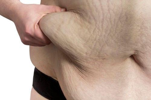 Abdominoplastia o Cirugía de Abdomen