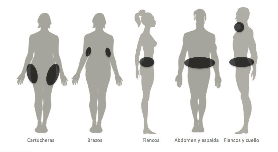 liposucción en valencia Dr Moltó: zonas de acumulación de grasa en hombres y mujeres