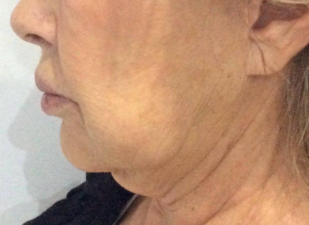 Antes de la cirugía de estiramiento facial