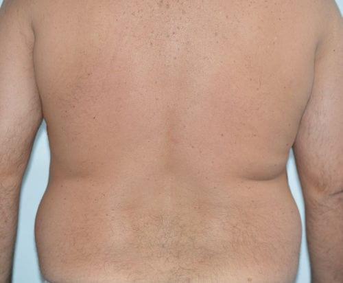 Lipo en la espalda Valencia Dr. Moltó