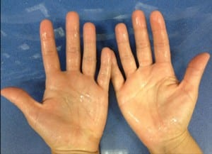 Clínicas para el tratamiento de eliminación del exceso de sudoración