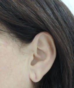 lobuloplastia o cirugia de lóbulo de oreja rasgado Valencia y Gandia Dr.Moltó