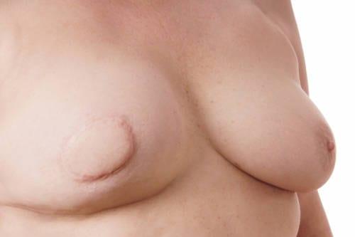 Mastectomía y/o Reconstrucción de pechos