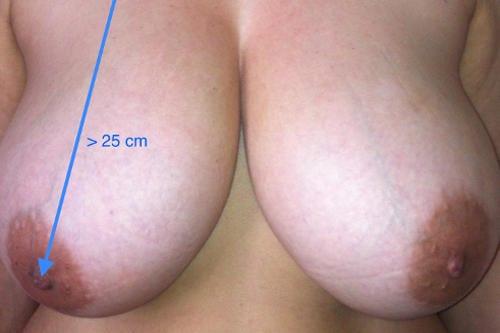 Reduccion de pecho, senos o mamas Dr. Molto