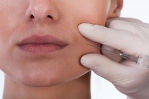 Rellenos faciales con ácido hialurónico en Valencia y Gandía