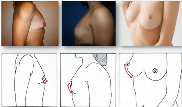Cirugia pechos tuberosos Valencia Dr. Molto