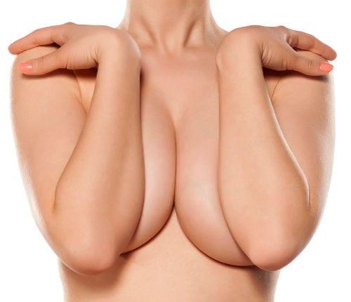 Gigantomastia: reducción mamaria cuando el volumen es mayor a 650 cc o COPA E
