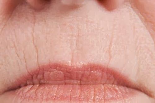 tratamiento arrugas en los labios o codigo de barras Dr. Moltó