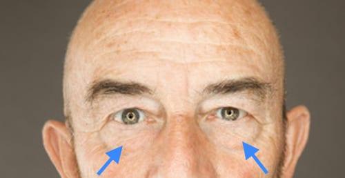 relleno de parpados superiores o inferiores pera eliminar las bolsas de los párpados