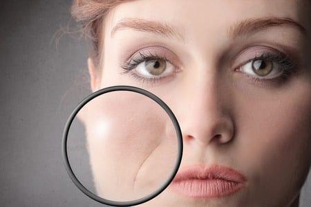 Relleno facial con grasa de surcos nasogenianos