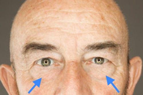 acido hialuronico tratamiento de ojeras