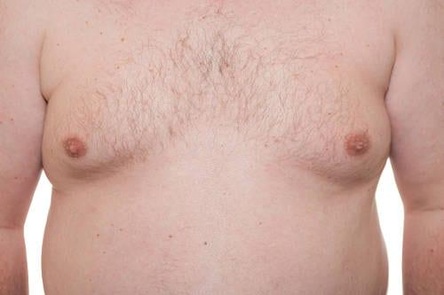 Ginecomastia: Reducción de Pecho en Hombres