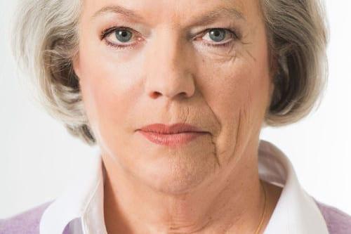 qué es el lifting facial (cara y cuello) o estiramiento facial