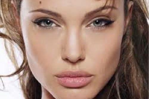 Relleno de labios con Grasa Propia Valencia Dr. Molto