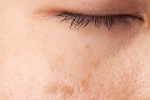 Eliminacion manchas faciales