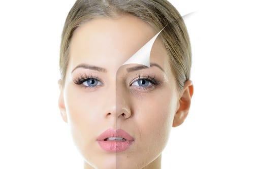 Mesoterapia facial en Valencia y Gandia Dr. Moltó