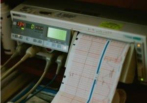 electrocardiograma preoperatorio para elevacion de cejas con cirugía