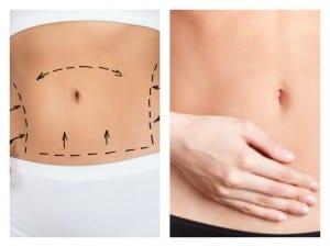 abdominoplastia drmolto