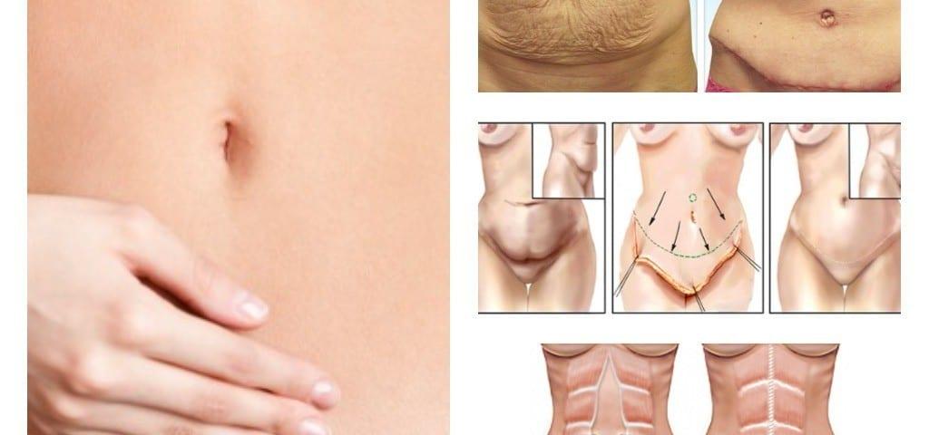 Abultamiento y secuelas despues de una abdominoplastia