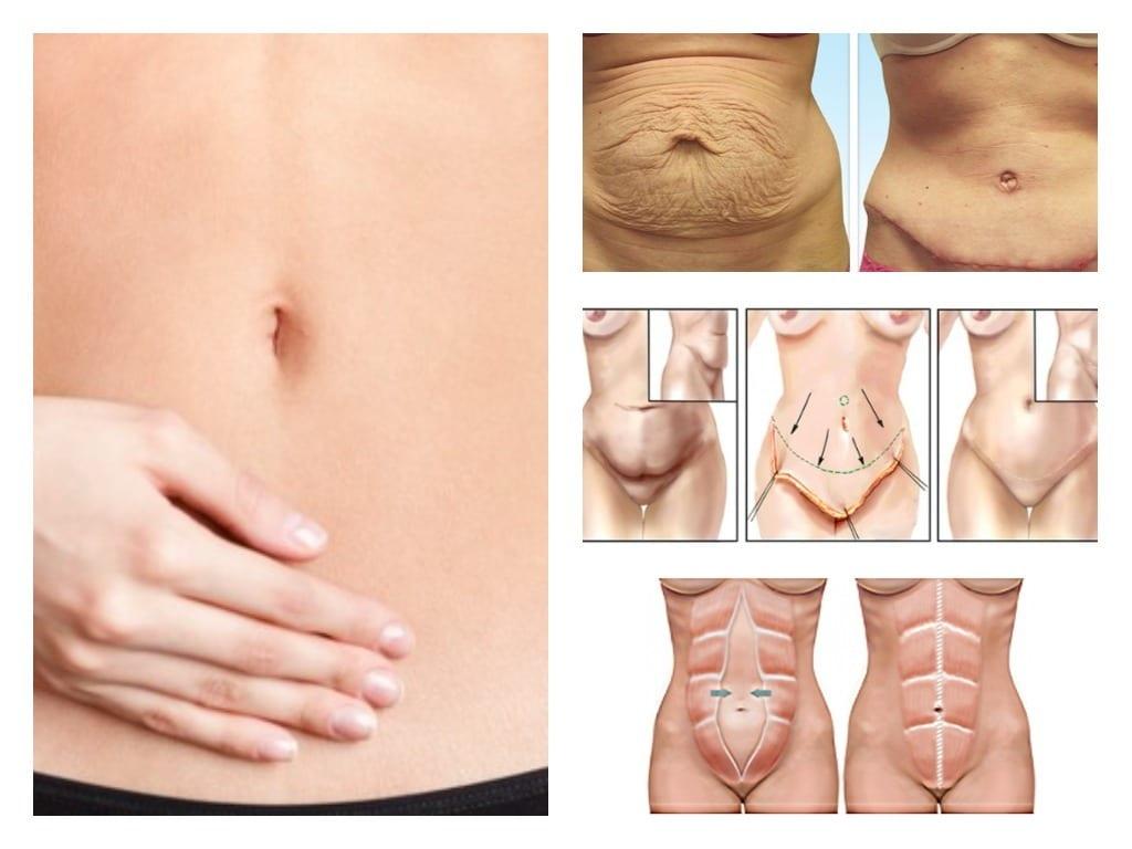 como reducir el tamaño del estomago sin cirugia