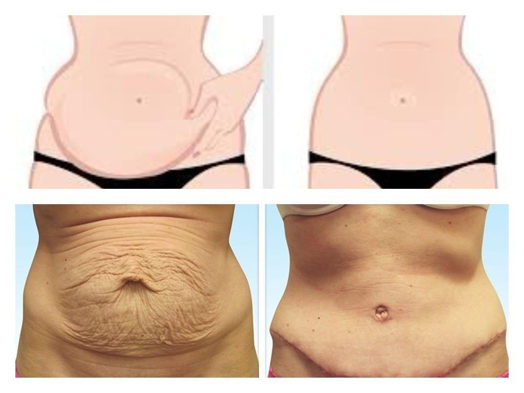 abultamientos e hinchazon despues de la abdominoplastia