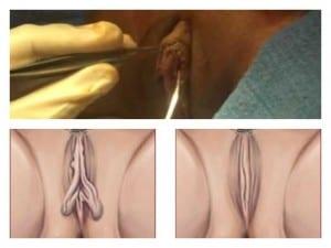 labioplastia adolescentes