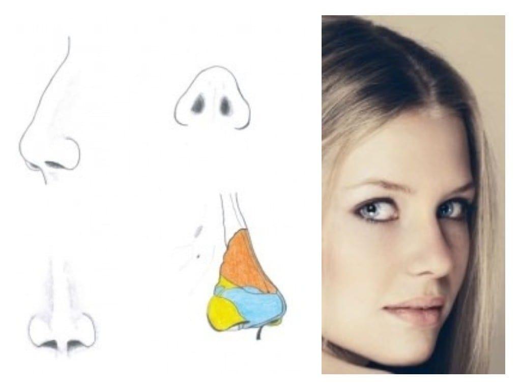 FAQ sobre cirugía de nariz