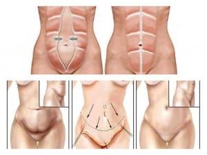 cirugía plástica de abdomen en Valencia