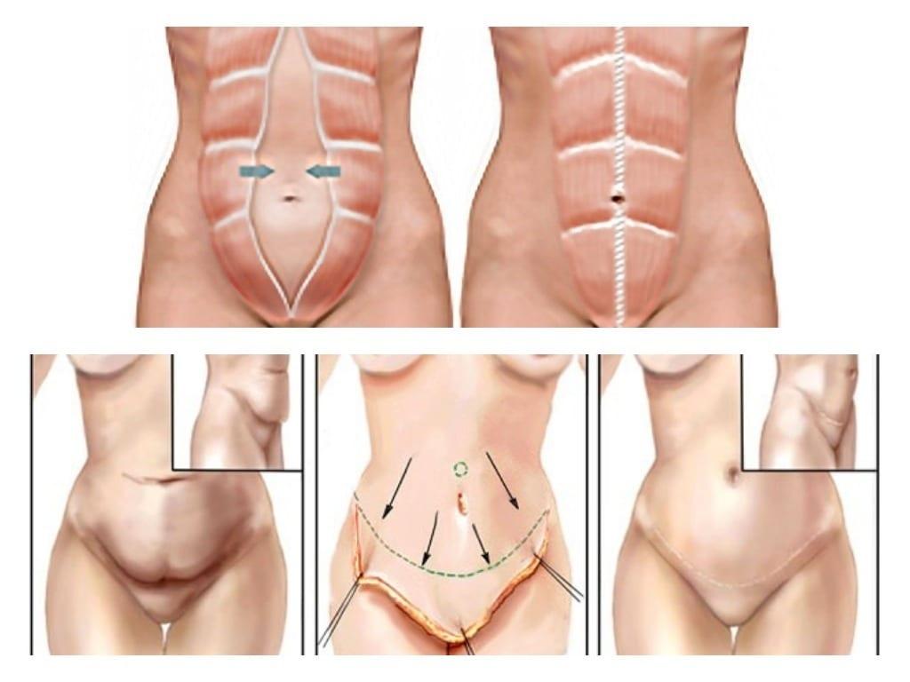 cirugía plástica de abdomen