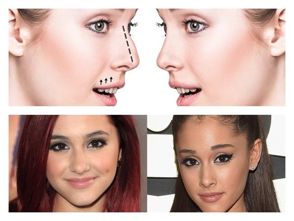 antes y despues cirugía nasal