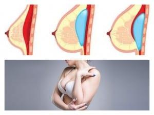 diagrama de colocación de implantes y mujer con pechos aumentados