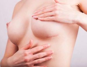 cicatriz tras una incisión submamaria de una cirugia de senos