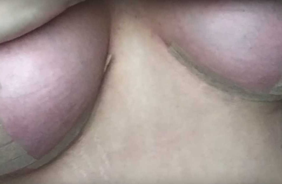 cicatrices tapadas tras una cirugia de senos