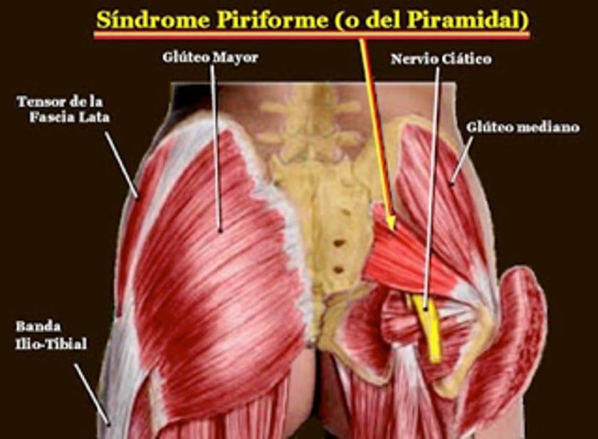 el nervio ciatico va por debajo del gluteo