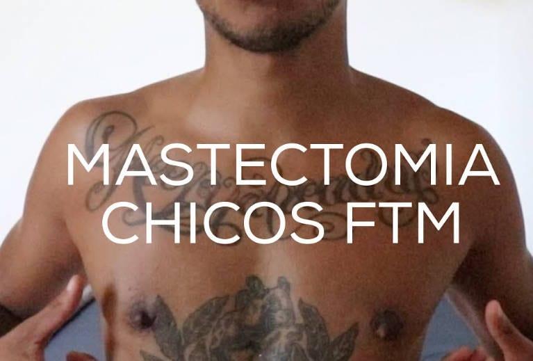 mastectomia de reasignacion de sexo Valencia Dr Molto