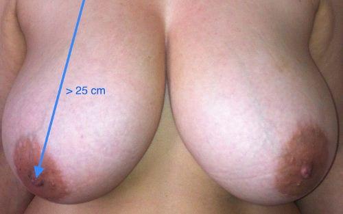 operación de reducción de senos en Valencia Dr. Moltó
