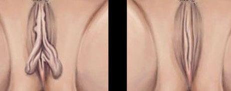 dibujo de un antes y después de una vaginoplastia, una de las operaciones de estética genital para mujer más solicitadas.