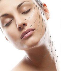 rostro de una mujer con líneas dibujadas mostrando la dirección de los hilos tensores.
