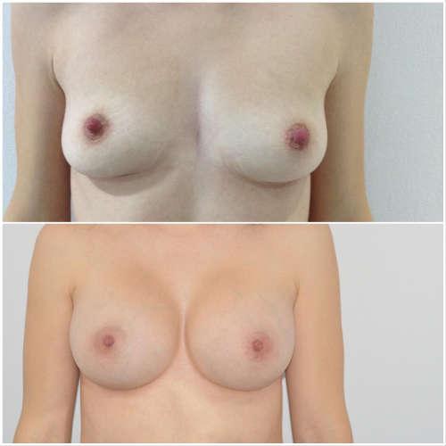 Antes y después aumento de pecho con implantes Dr.Molto