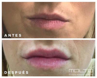 Fotos antes y despues perfilado de labios Dr.Moltó