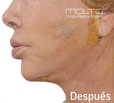 Resultado tras la cirugía de lifting en Valencia con el Dr.Moltó