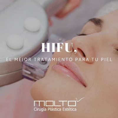 hifu facial y corporal en Valencia y Gandía Dr.Moltó
