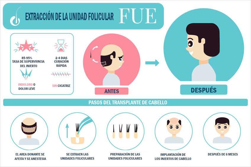 Técnica de Injerto FUE: extracción individual de folículos Valencia y Gandía Dr.Moltó