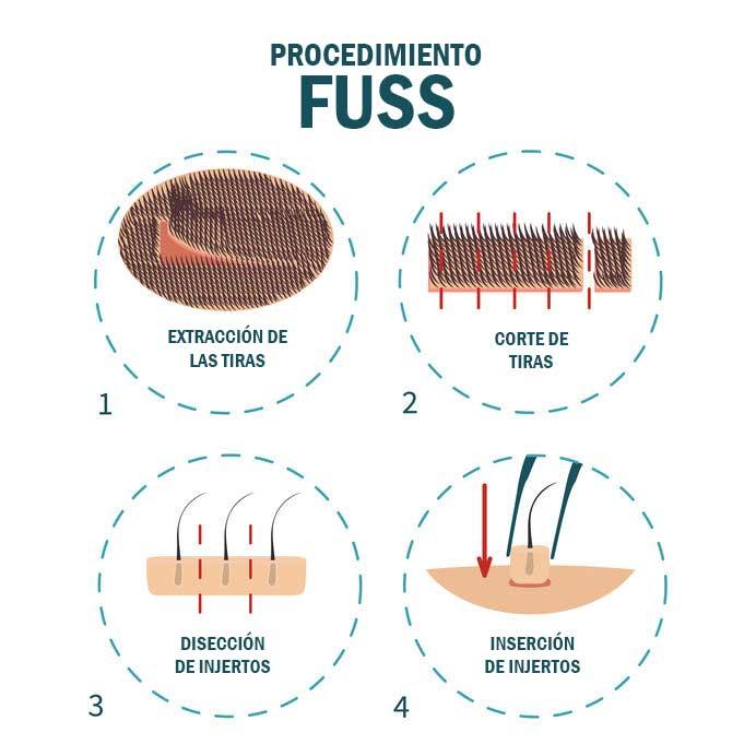 injerto capilar FUSS Dr.Molto