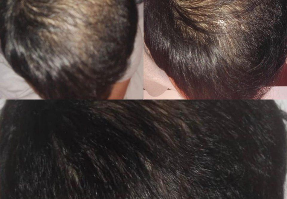 alopecia andrógena masculina