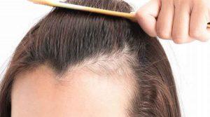 patrones de caída de cabello en mujeres.