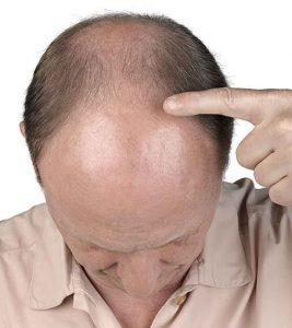 hombre señalando la zona calva de su cabeza. Candidatos para el tratamiento de reemplazo de cabello en Valencia.